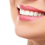 Astuces naturelles pour dents blanches