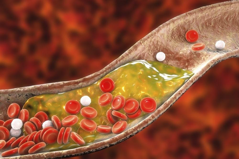 Les bienfaits des fruits à coques - Lutter contre le mauvais cholestérol
