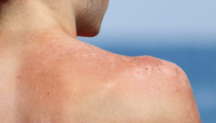 Les dangers du soleil