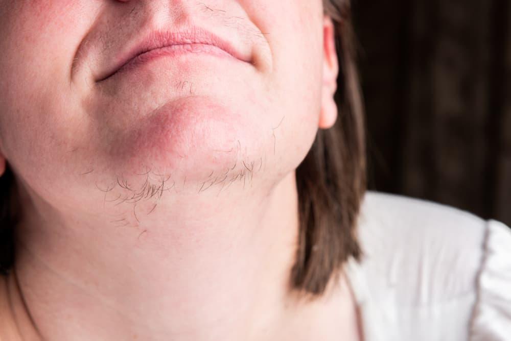 Symptômes du dérèglement hormonal: Apparition de poils